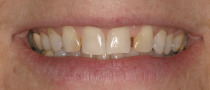 Veneers: before